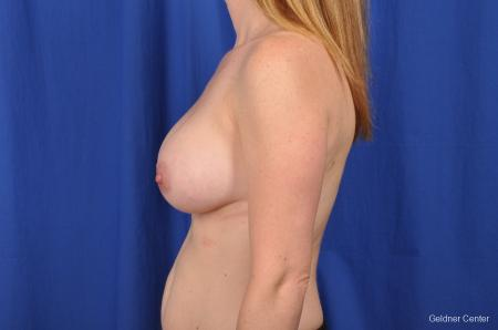 Breast Augmentation Hinsdale, Chicago 2531 -  After Image 4