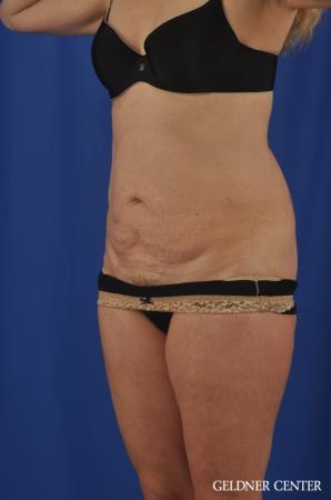 Chicago Abdominoplasty 11854 - Before and After Image 4