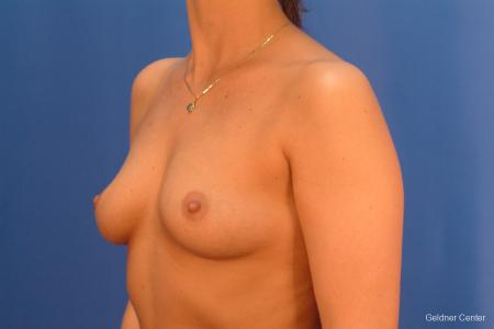 Chicago Breast Augmentation 2432 - Before and After Image 4