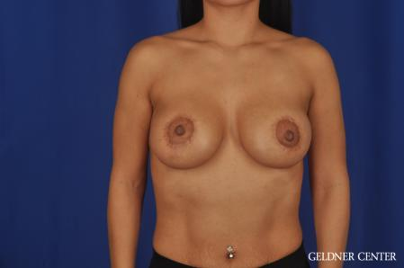 Breast Lift: Patient 55 - After Image 1