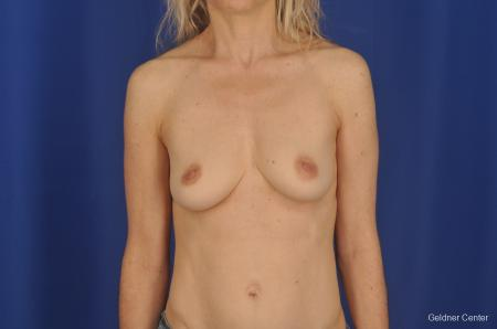 Breast Augmentation Lake Shore Dr, Chicago 2309 - Before Image 1