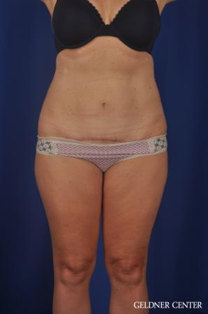 Tummy Tuck: Patient 22 - After Image 1