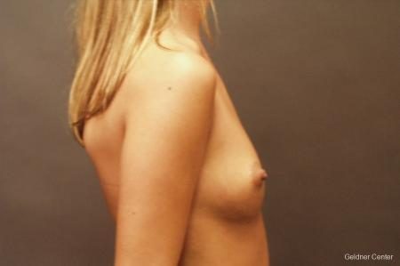 Breast Augmentation Lake Shore Dr, Chicago 2533 - Before Image 2