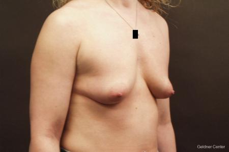 Breast Augmentation Lake Shore Dr, Chicago 2436 - Before Image 3