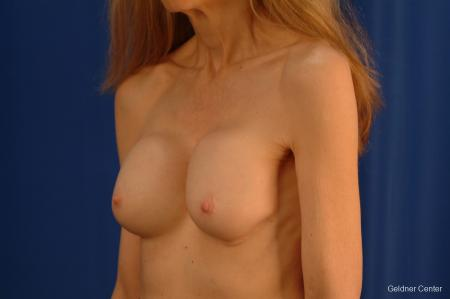Complex Breast Augmentation Hinsdale, Chicago 2398 - Before and After Image 5