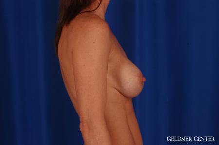 Complex Breast Augmentation: Patient 36 - Before 3