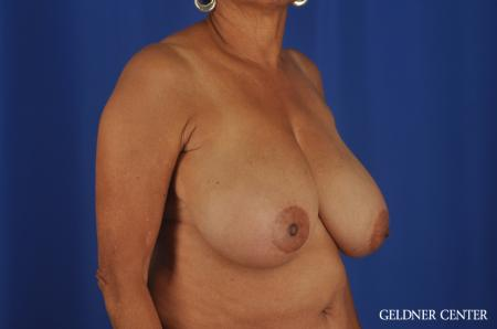 Breast Reduction Streeterville, Chicago 6650 - Before 2