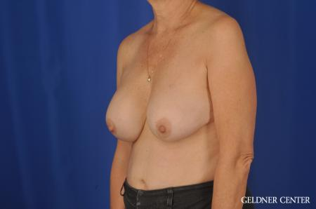 Chicago Breast Augmentation 4285 - Before and After Image 4