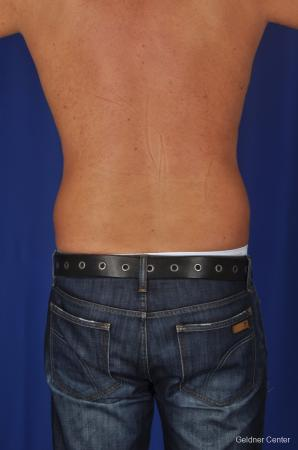 Liposuction For Men: Patient 1 - Before and After Image 4