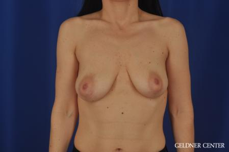 Breast Lift: Patient 52 - Before Image 1