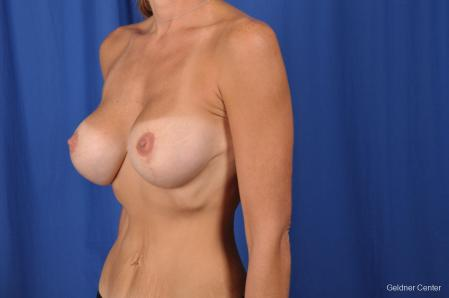 Breast Lift: Patient 45 - After Image 4