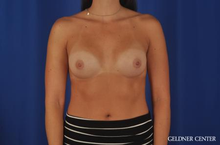 Breast Augmentation Hinsdale, 4290 -  After Image 1