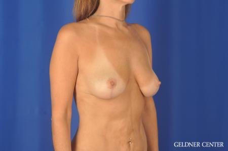 Chicago Breast Lift 11866 -  After Image 2