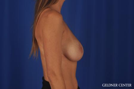 Chicago Breast Augmentation 5476 -  After Image 3