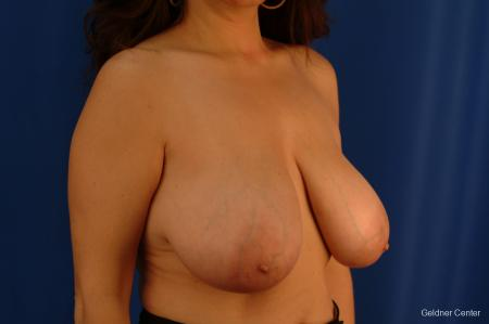 Breast Reduction Streeterville, Chicago 2289 - Before Image 3