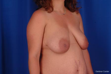 Breast Lift Streeterville, Chicago 2301 - Before and After Image 2