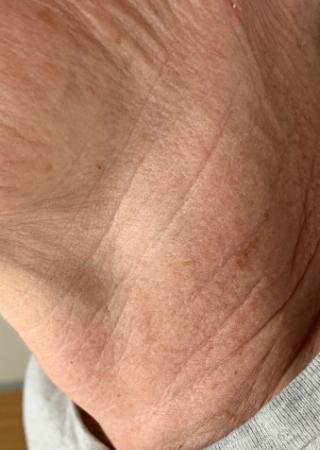 SkinPen®: Patient 8 - After 1