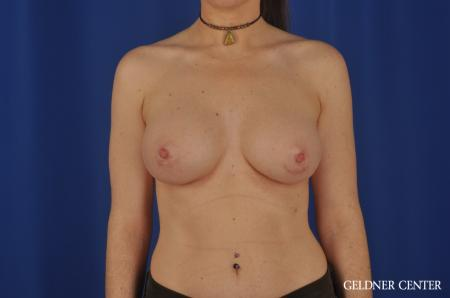Breast Augmentation Hinsdale, Chicago 5579 -  After Image 1