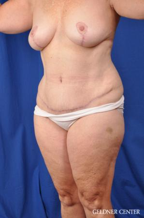 Abdominoplasty Patient 1 before and after photos -  After Image 4
