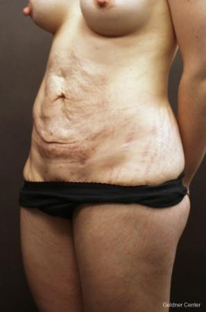 Tummy Tuck: Patient 11 - Before and After Image 4