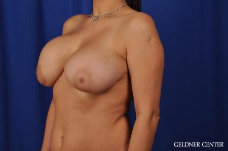 Chicago Breast Lift 5543 - Before Image 4