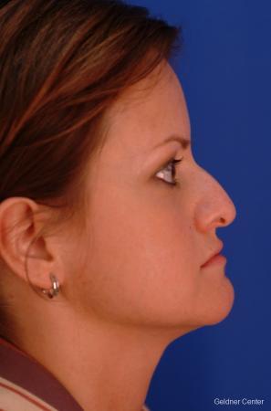 Rhinoplasty: Patient 2 - Before Image 2