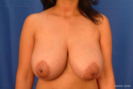 Breast Reduction Lake Shore Dr, Chicago 2417 - Before Image 1