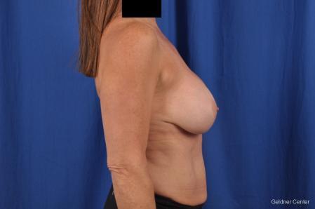 Complex Breast Augmentation: Patient 35 - Before Image 2