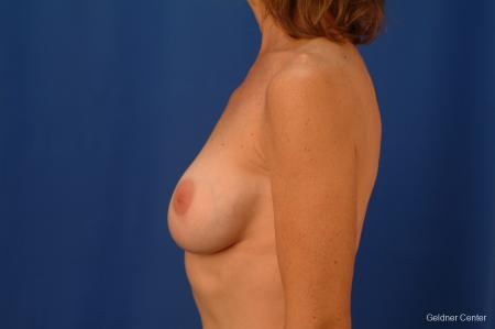 Chicago Complex Breast Augmentation 2445 -  After Image 3