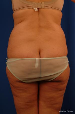 Lipoabdominoplasty: Patient 3 - Before and After Image 4