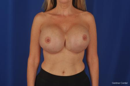 Complex Breast Augmentation Lake Shore Dr, Chicago 2389 - Before Image