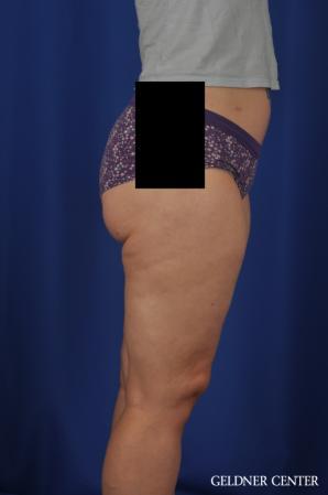 Liposuction: Patient 44 - After Image 3