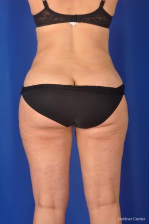 Liposuction: Patient 2 - After Image 4