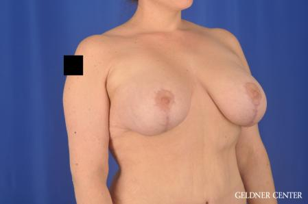 Breast Augmentation: Patient 161 - After 2
