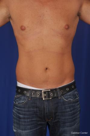 Liposuction For Men: Patient 1 - Before Image 1