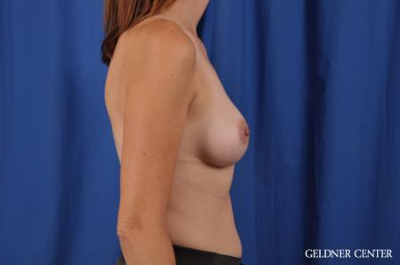 Breast Augmentation: Patient 151 - After Image 2