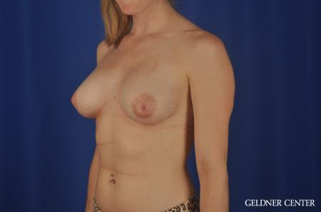 Chicago Breast Augmentation 5468 -  After Image 4