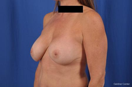 Breast Augmentation: Patient 153 - Before and After Image 5