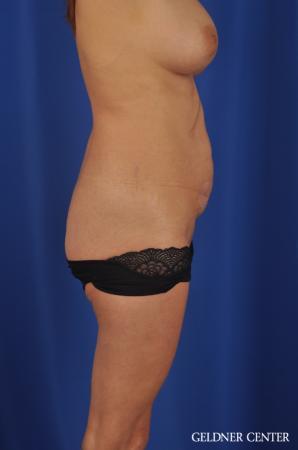 Liposuction: Patient 37 - Before 3