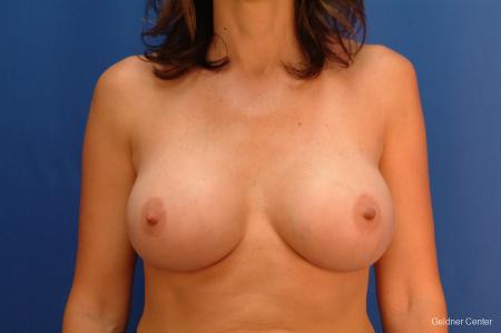 Breast Augmentation Streeterville, Chicago 2437 -  After Image 1