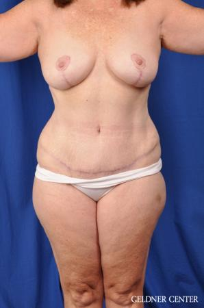 Abdominoplasty Patient 1 before and after photos -  After Image 1
