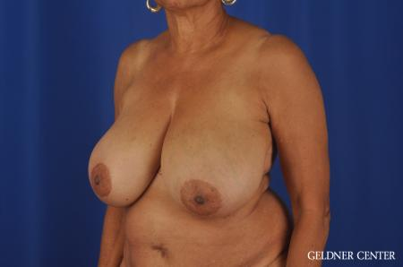 Breast Reduction Streeterville, Chicago 6650 - Before and After 4