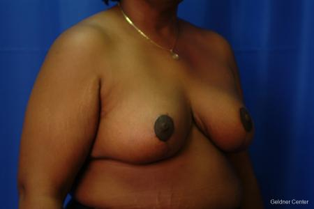 Chicago Breast Reduction 2406 -  After Image 3