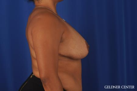 Breast Reduction Lake Shore Dr, Chicago 9099 -  After 3