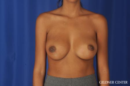 Chicago Breast Augmentation 11869 -  After Image 1