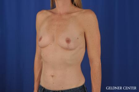 Chicago Complex Breast Augmentation 4005 - Before and After Image 4