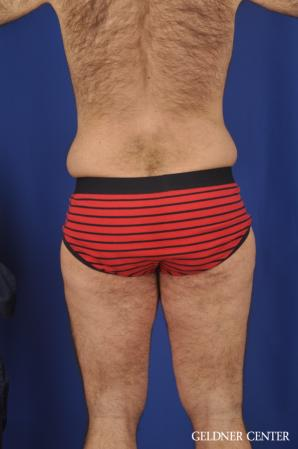 Liposuction For Men: Patient 10 - Before and After Image 4