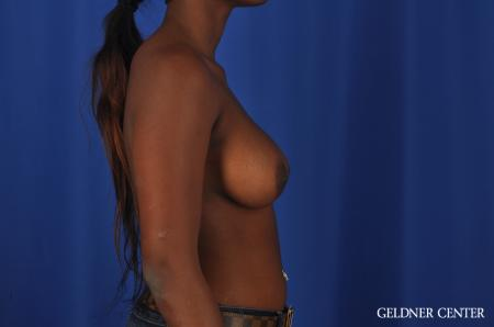 Breast Augmentation Hinsdale, Chicago 4001 -  After Image 2