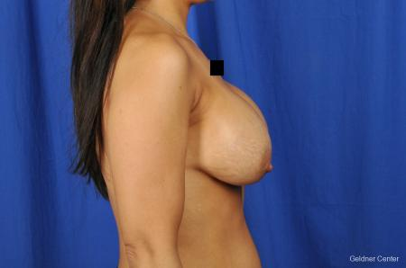 Chicago Breast Lift 2059 - Before Image 2