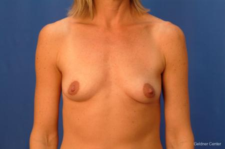 Breast Augmentation Lake Shore Dr, Chicago 2446 - Before Image 1